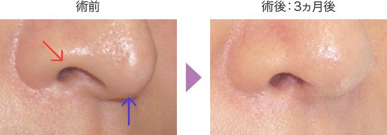 鼻中隔延長術の症例