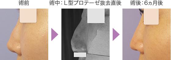 プロテーゼ抜去+鼻中隔延長術の症例