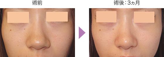 鼻翼縮小術(小鼻縮小術)と鼻尖形成術の症例