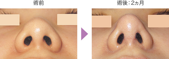 団子鼻解消(鼻翼縮小術)の症例