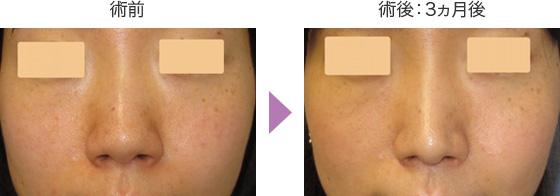 鼻尖形成術の症例 正面