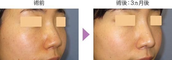 鼻尖形成術の症例 斜め前1