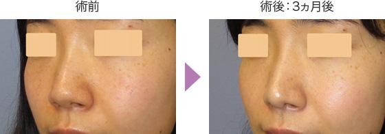 鼻尖形成術の症例 斜め前2